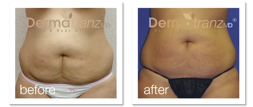 ZeddWell™ remove-belly-fat-without-surgery