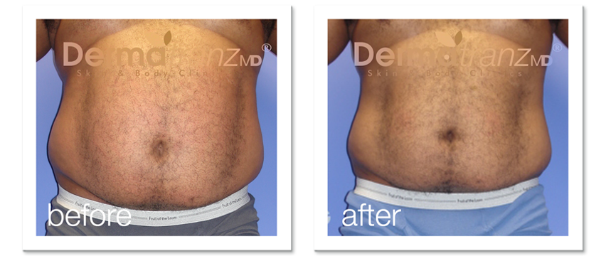 ZeddWell™ remove-belly-fat-without-surgery-for-men