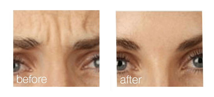 ZeddWell™ Botox® before after