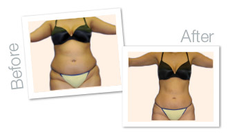 ZeddWellMD™ Remove belly fat laser treatment in Jacksonville FL