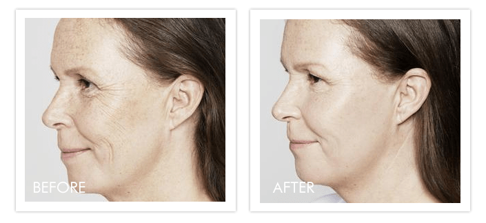 Restylane® before after